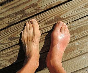 Gout - Feet